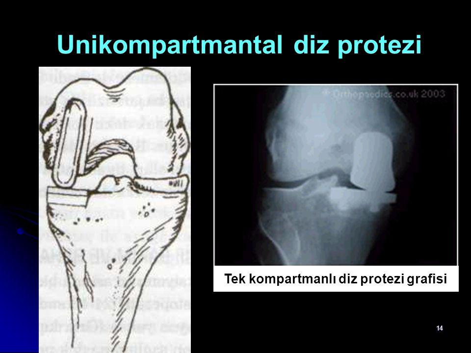 14 Unikompartmantal diz protezi Tek kompartmanlı diz protezi grafisi