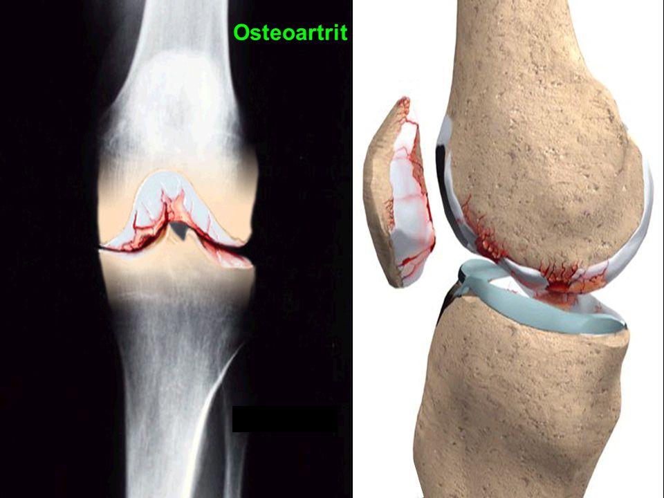 25 Osteoartrit