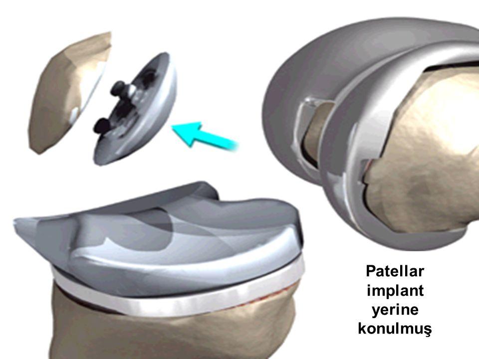 28 Patellar implant yerine konulmuş