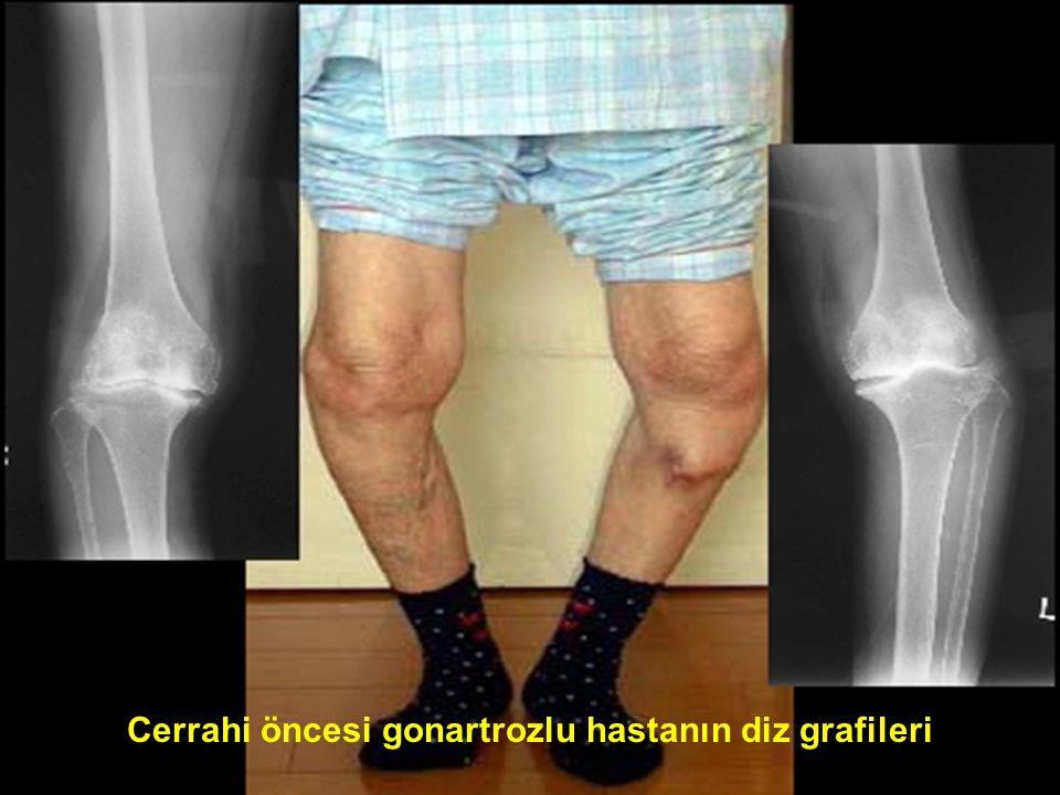29 Cerrahi öncesi gonartrozlu hastanın diz grafileri