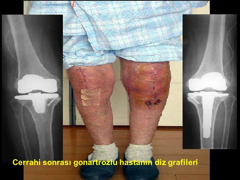 30 Cerrahi sonrası gonartrozlu hastanın diz grafileri