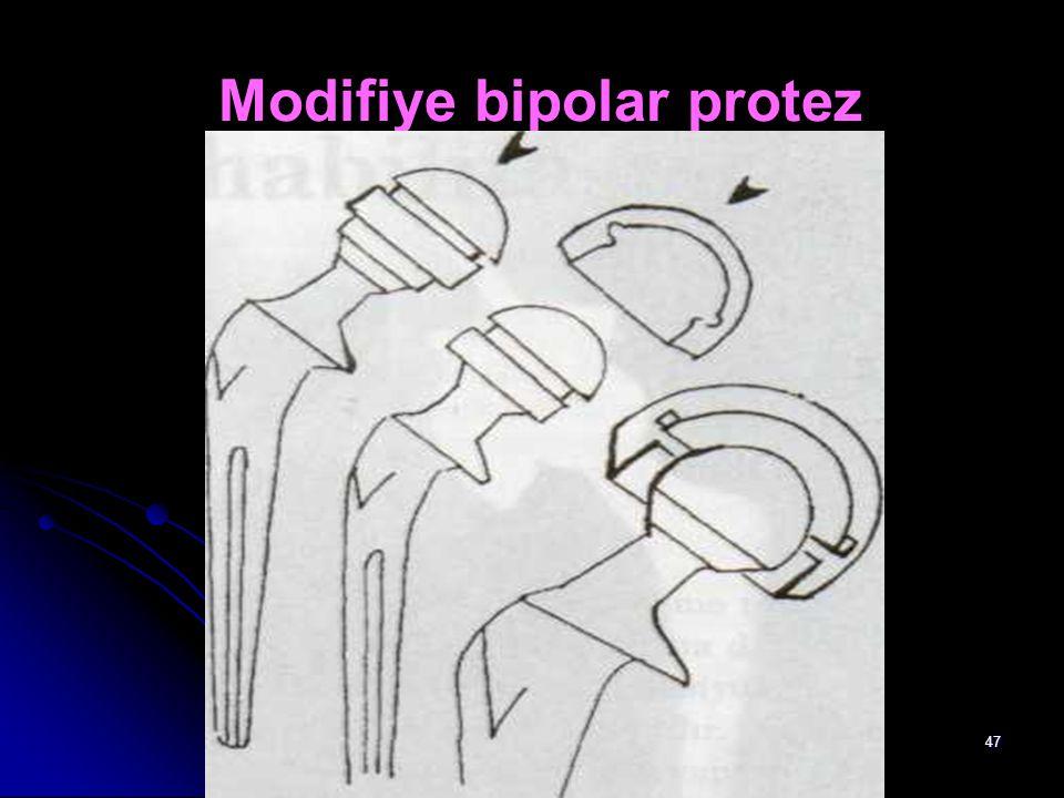 47 Modifiye bipolar protez