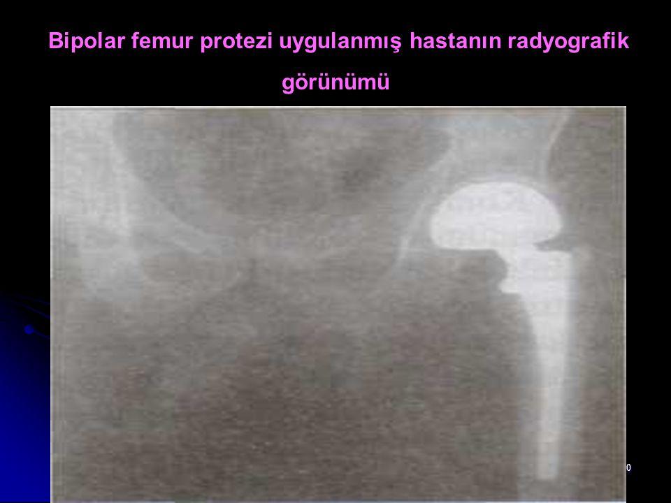 50 Bipolar femur protezi uygulanmış hastanın radyografik görünümü