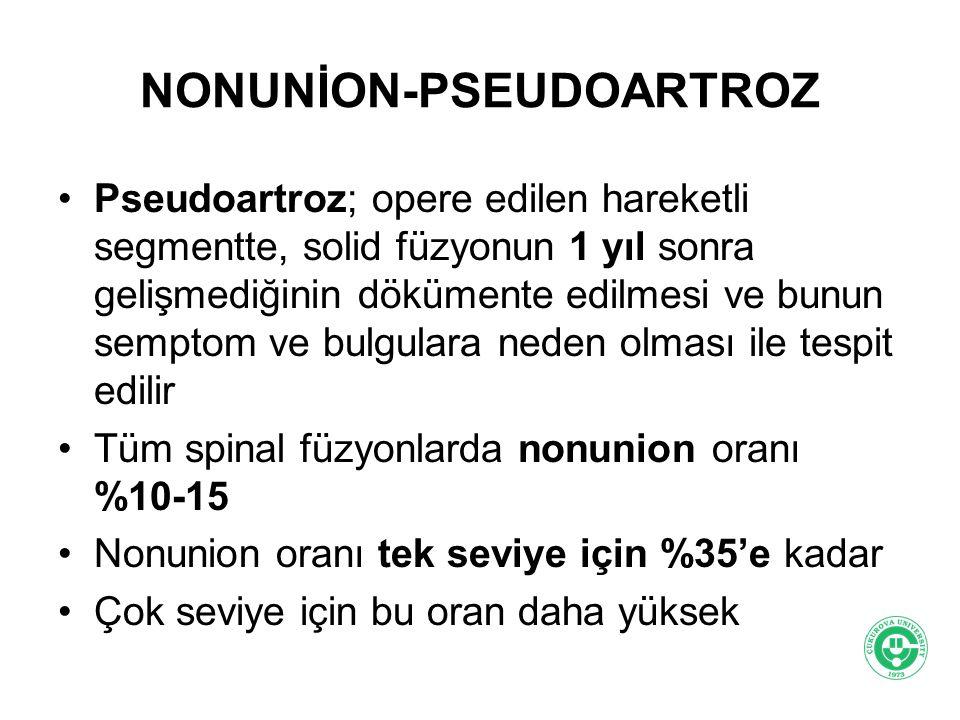 NONUNİON-PSEUDOARTROZ Pseudoartroz; opere edilen hareketli segmentte, solid füzyonun 1 yıl sonra gelişmediğinin dökümente edilmesi ve bunun semptom ve