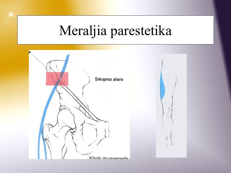 Meraljia parestetika N. Cutaneus femoralis lateralis'in spina iliaca anterior superior aşağısında lig. inguinale tarafından sıkıştırılması. Şişmanlama