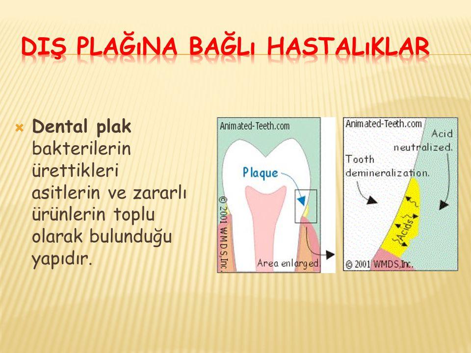  Dental plak bakterilerin ürettikleri asitlerin ve zararlı ürünlerin toplu olarak bulunduğu yapıdır.