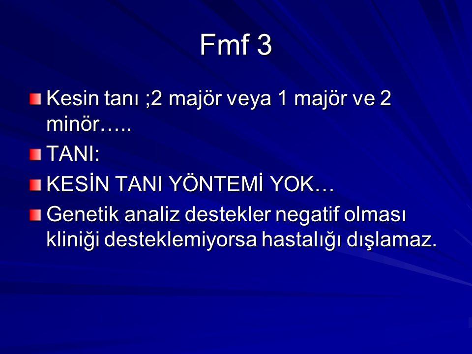Fmf 3 Kesin tanı ;2 majör veya 1 majör ve 2 minör…..