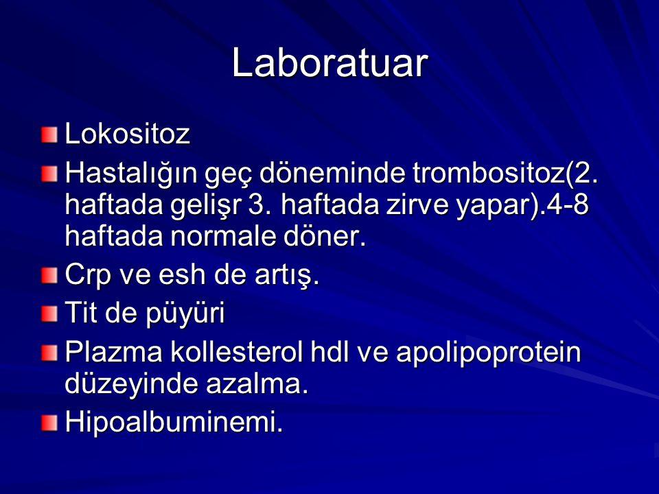 Laboratuar Lokositoz Hastalığın geç döneminde trombositoz(2.
