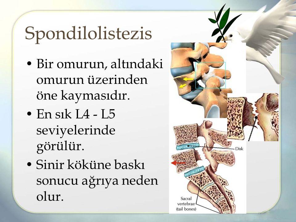 Spondilolistezis Bir omurun, altındaki omurun üzerinden öne kaymasıdır.