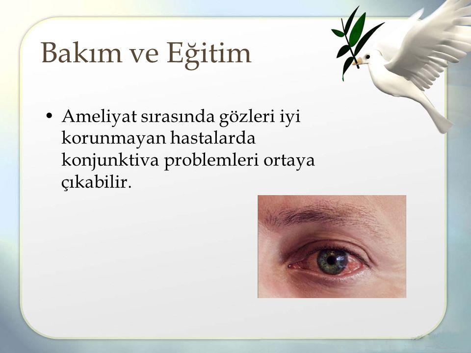 Bakım ve Eğitim Ameliyat sırasında gözleri iyi korunmayan hastalarda konjunktiva problemleri ortaya çıkabilir.