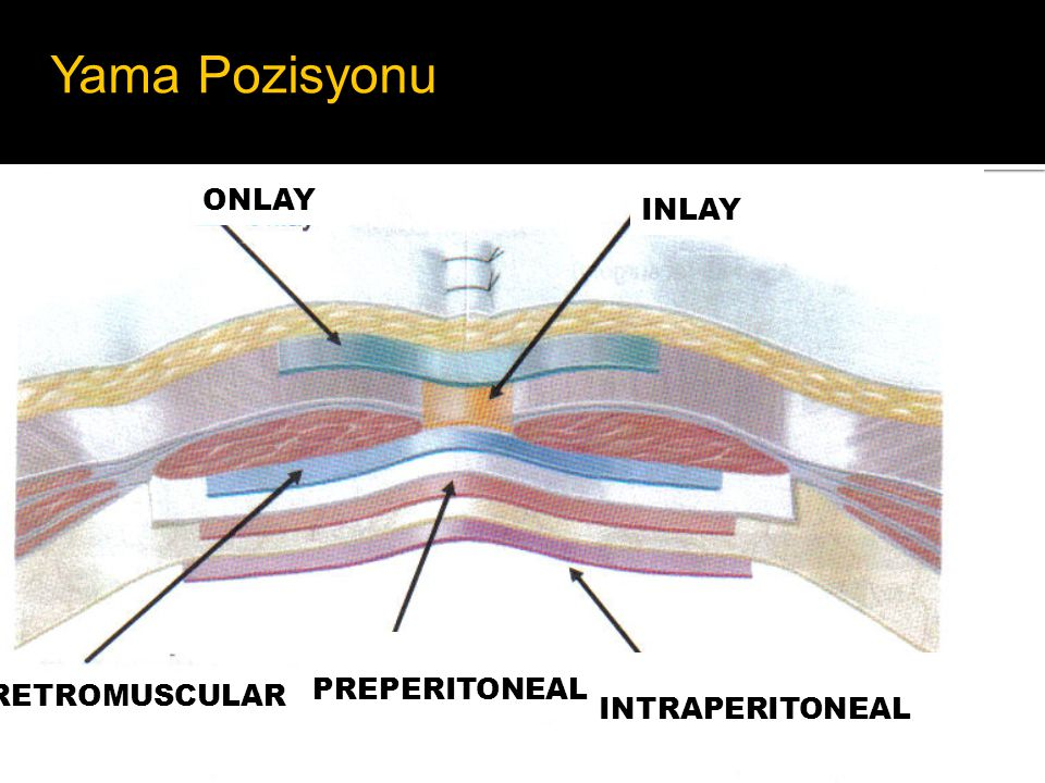 ONLAY PREPERITONEAL INTRAPERITONEAL RETROMUSCULAR INLAY drawing courtesy of Prof Ulrich Dietz, W ü rzburg Yama Pozisyonu