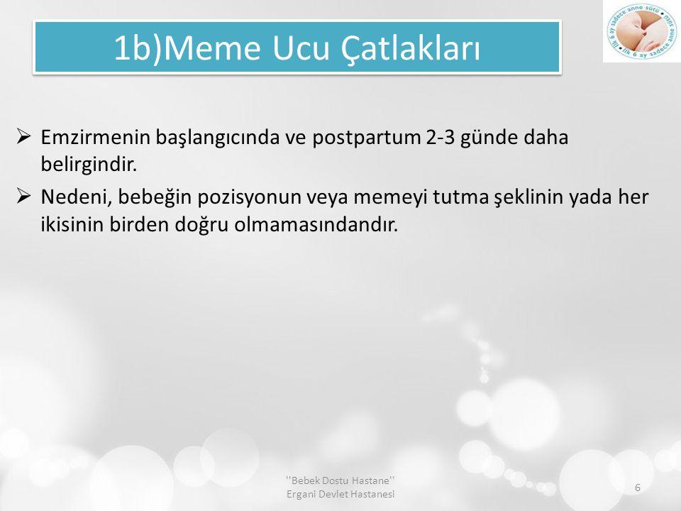 1b)Meme Ucu Çatlakları  Emzirmenin başlangıcında ve postpartum 2-3 günde daha belirgindir.