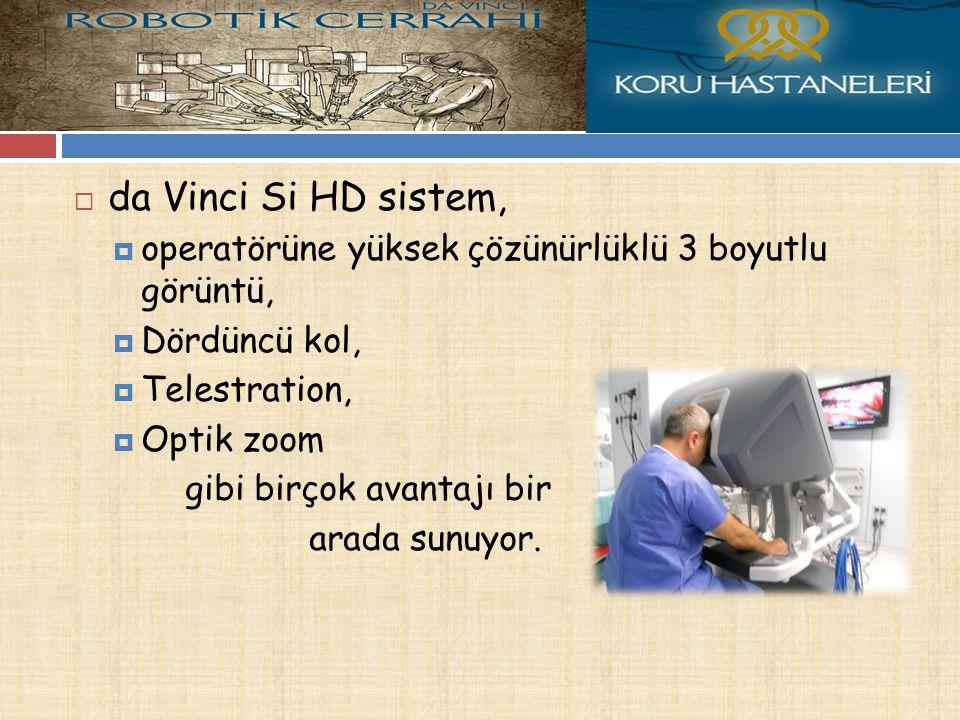  da Vinci Si HD sistem,  operatörüne yüksek çözünürlüklü 3 boyutlu görüntü,  Dördüncü kol,  Telestration,  Optik zoom gibi birçok avantajı bir arada sunuyor.