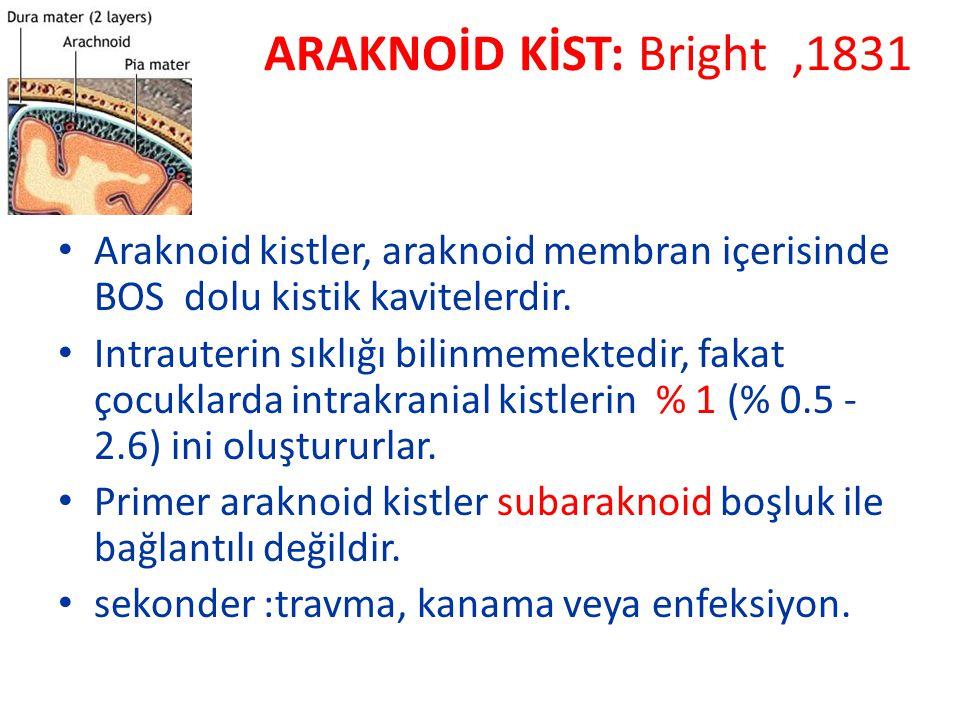 ARAKNOİD KİST: Bright,1831 Araknoid kistler, araknoid membran içerisinde BOS dolu kistik kavitelerdir. Intrauterin sıklığı bilinmemektedir, fakat çocu