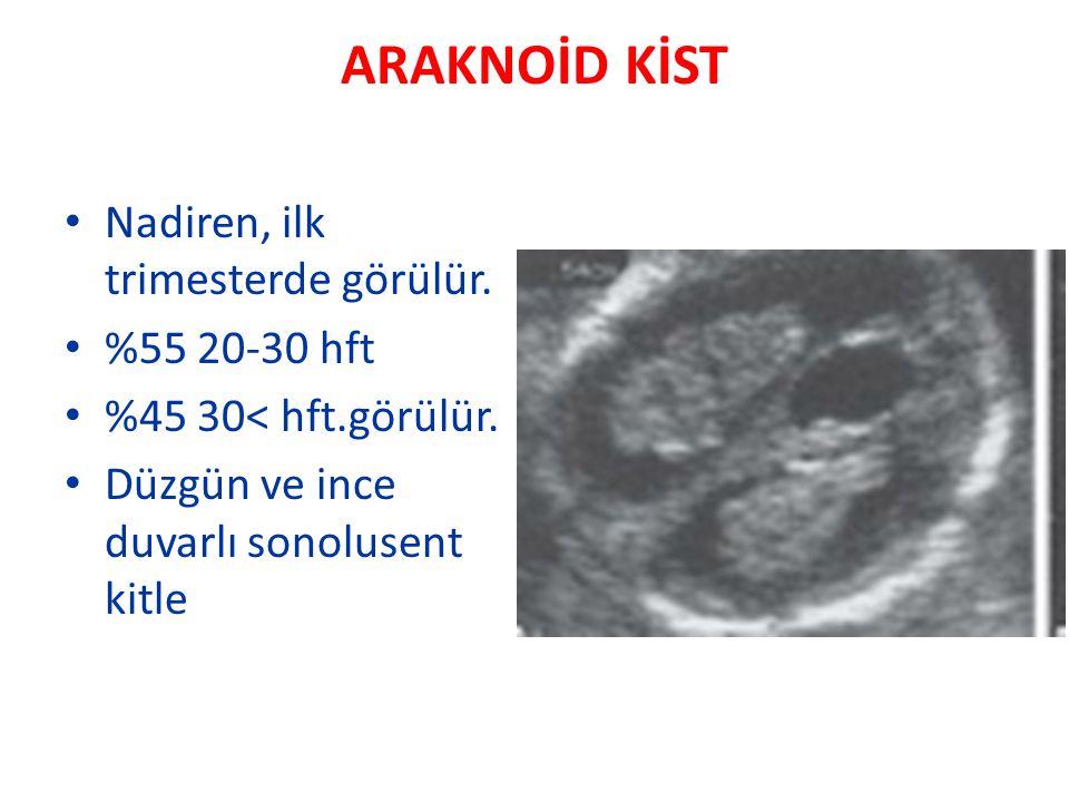 ARAKNOİD KİST Nadiren, ilk trimesterde görülür. %55 20-30 hft %45 30< hft.görülür. Düzgün ve ince duvarlı sonolusent kitle