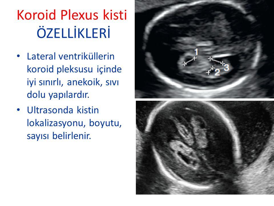 Koroid Plexus kisti ÖZELLİKLERİ Lateral ventriküllerin koroid pleksusu içinde iyi sınırlı, anekoik, sıvı dolu yapılardır. Ultrasonda kistin lokalizasy