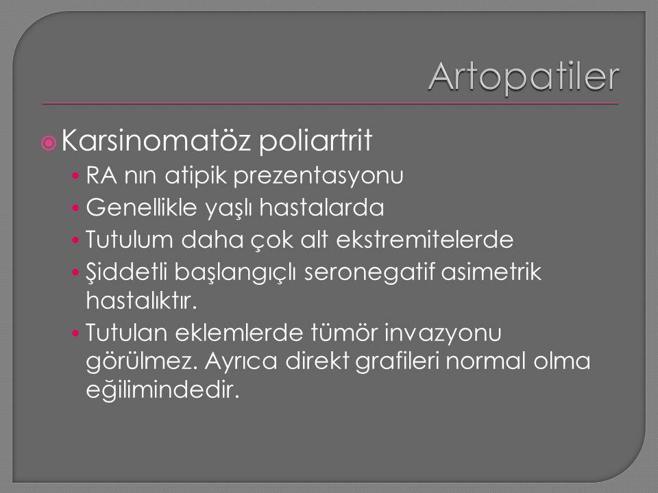  Karsinomatöz poliartrit RA nın atipik prezentasyonu Genellikle yaşlı hastalarda Tutulum daha çok alt ekstremitelerde Şiddetli başlangıçlı seronegati