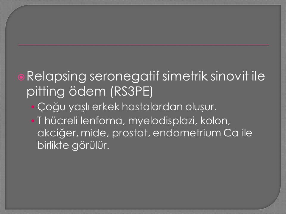  Relapsing seronegatif simetrik sinovit ile pitting ödem (RS3PE) Çoğu yaşlı erkek hastalardan oluşur. T hücreli lenfoma, myelodisplazi, kolon, akciğe