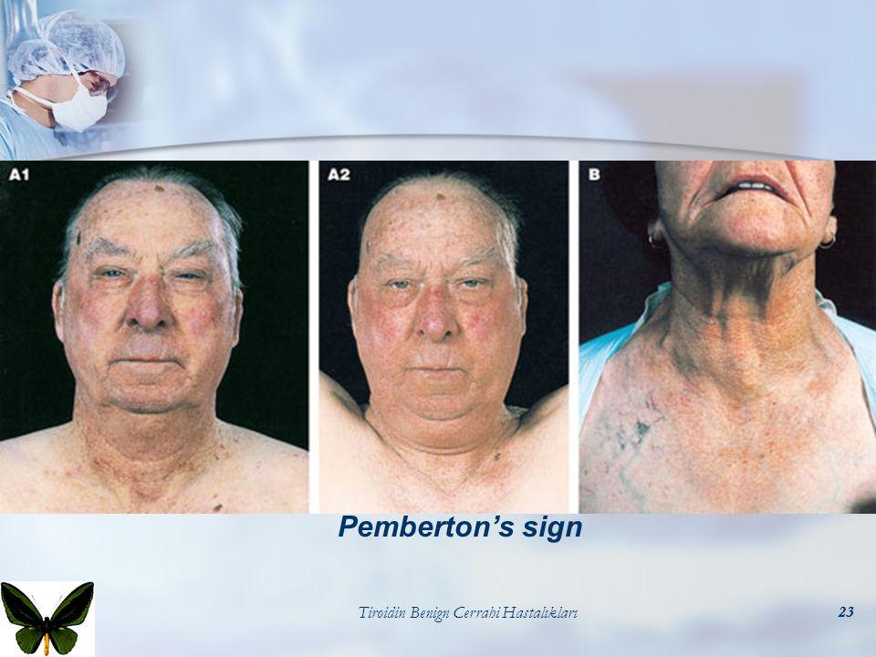 Tiroidin Benign Cerrahi Hastalıkları23 Pemberton's sign