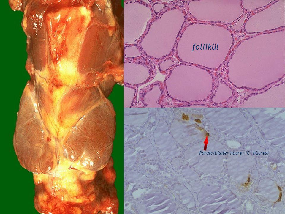3 follikül Parafolliküler hücre; 'C' hücresi