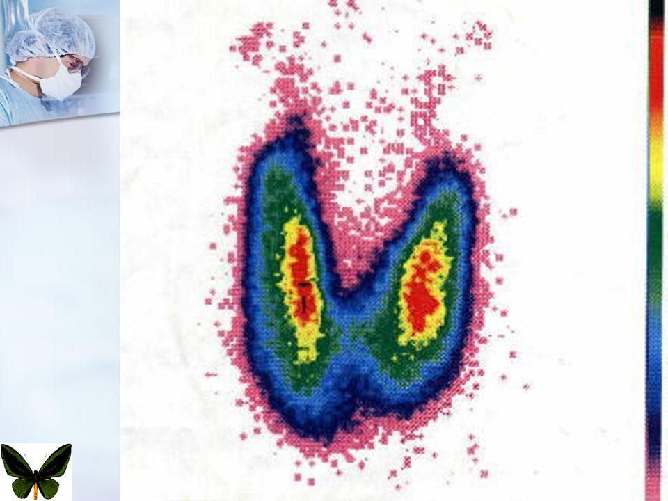 Tiroidin Benign Cerrahi Hastalıkları65 ayırıcı tanı enfeksiyonlar enfeksiyonlar granülomatöz, piyojenik ve viral granülomatöz, piyojenik ve viral konjenital anomalileri konjenital anomalileri tek taraflı lob agenezisi tek taraflı lob agenezisi kistik higroma kistik higroma dermoid kist dermoid kist teratoma teratoma tiroidit tiroidit subakut tiroidit subakut tiroidit Hashimato tiroiditi Hashimato tiroiditi Riedel struması Riedel struması