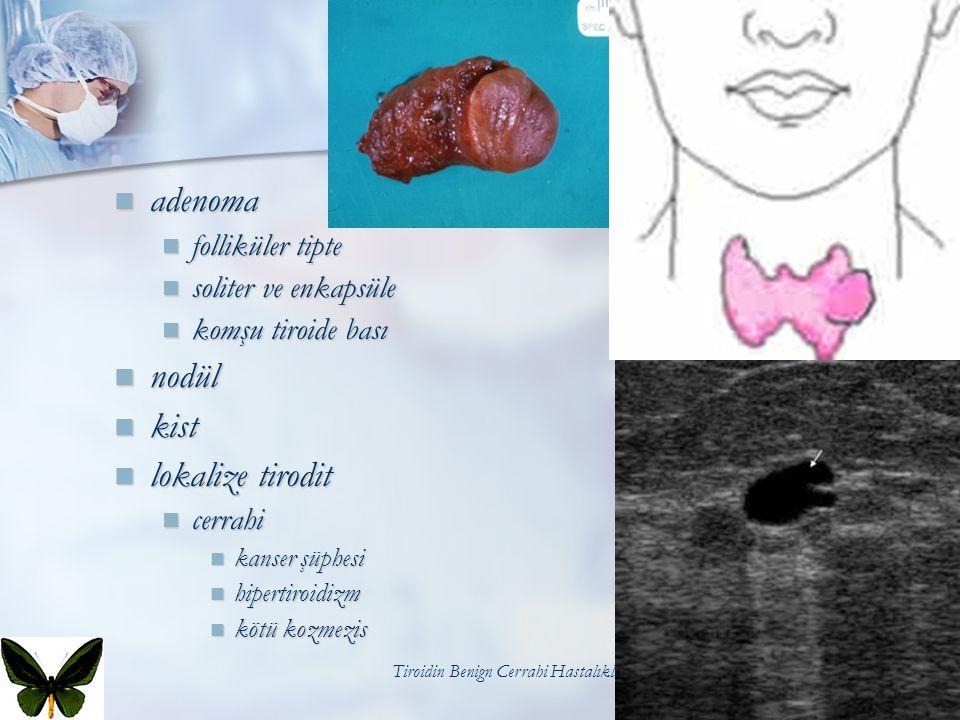 Tiroidin Benign Cerrahi Hastalıkları56 adenoma adenoma folliküler tipte folliküler tipte soliter ve enkapsüle soliter ve enkapsüle komşu tiroide bası