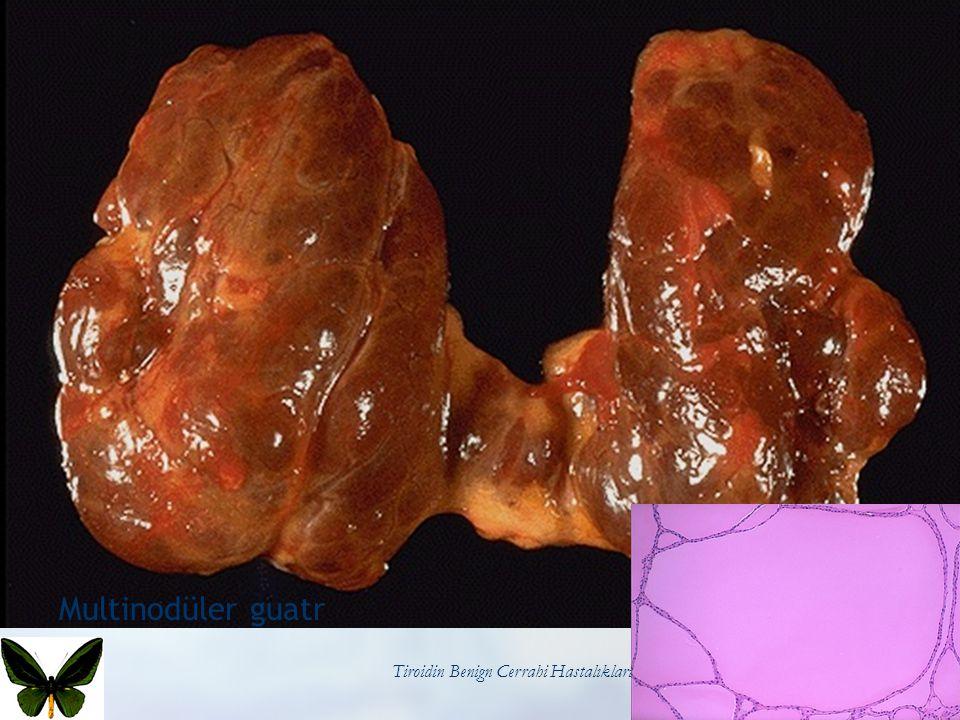 Tiroidin Benign Cerrahi Hastalıkları67 Multinodüler guatr