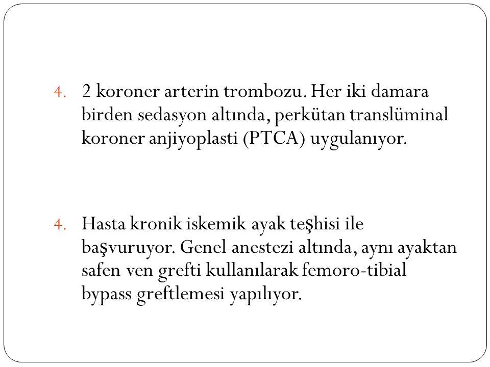 4.2 koroner arterin trombozu.