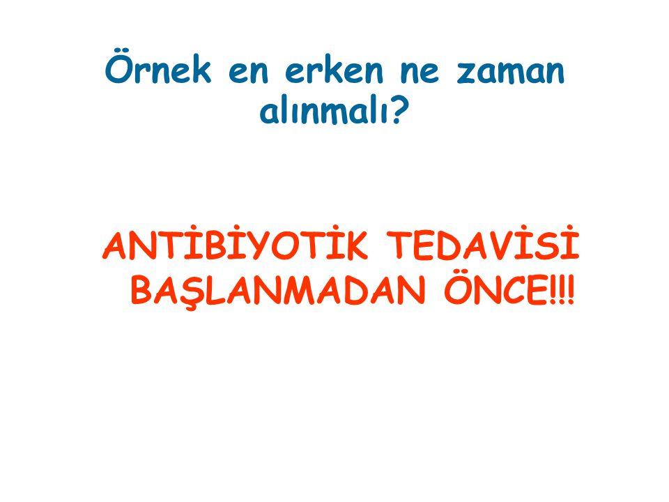 Örnek en erken ne zaman alınmalı? ANTİBİYOTİK TEDAVİSİ BAŞLANMADAN ÖNCE!!!