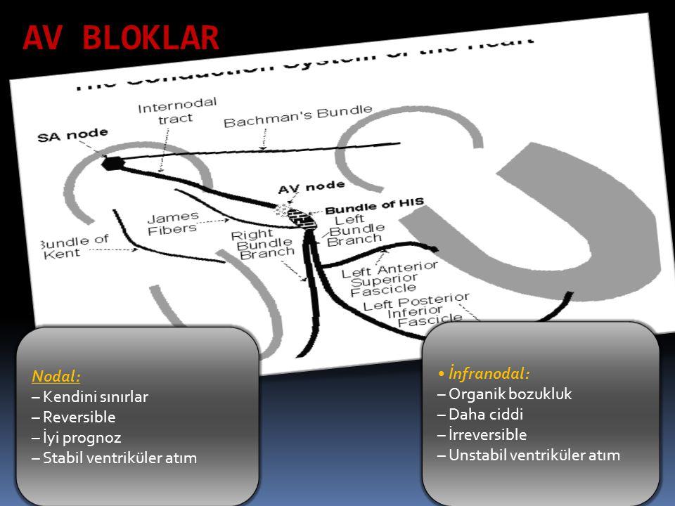 AV BLOKLAR Nodal: – Kendini sınırlar – Reversible – İyi prognoz – Stabil ventriküler atım İnfranodal: – Organik bozukluk – Daha ciddi – İrreversible –