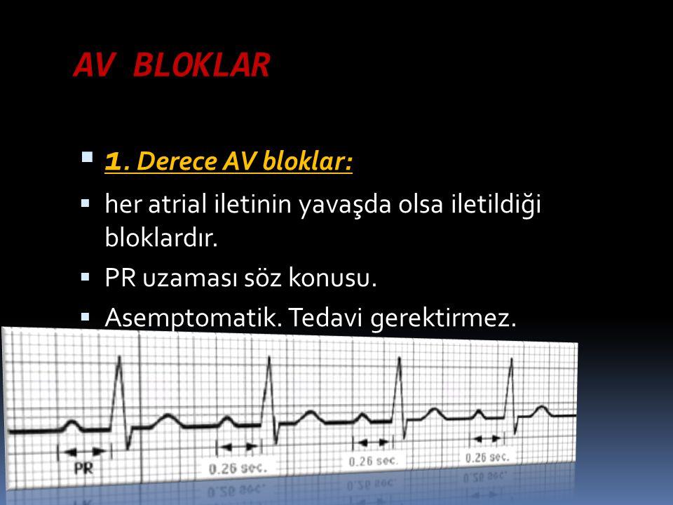AV BLOKLAR  1. Derece AV bloklar:  her atrial iletinin yavaşda olsa iletildiği bloklardır.  PR uzaması söz konusu.  Asemptomatik. Tedavi gerektirm