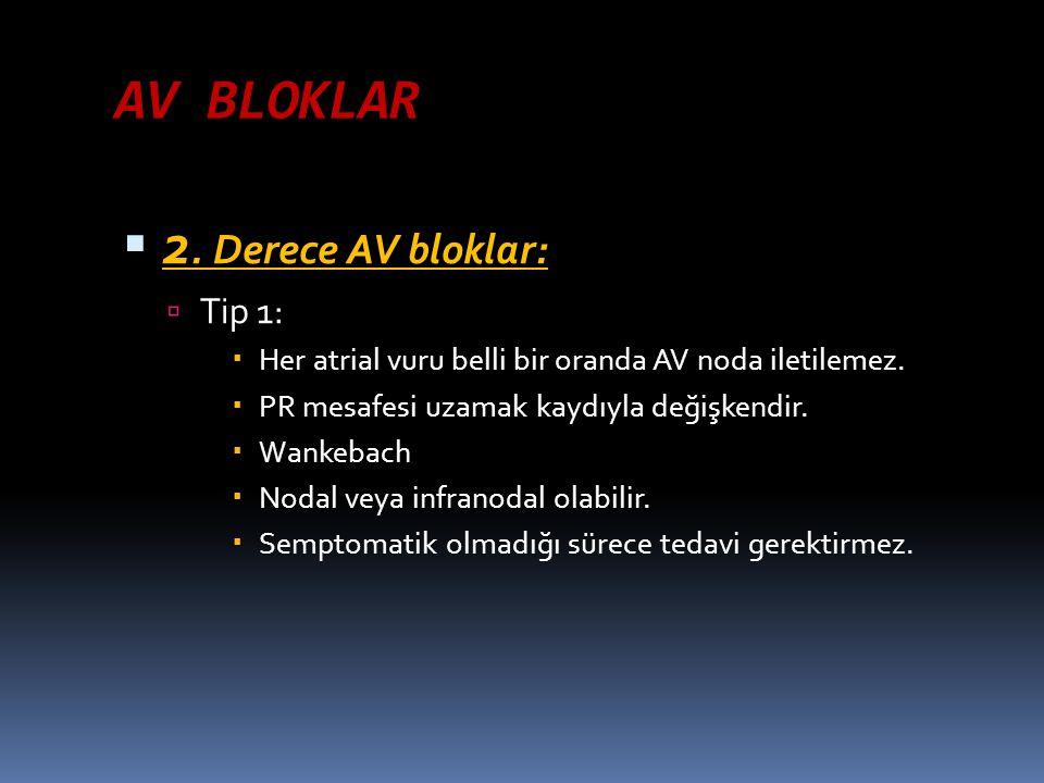 AV BLOKLAR  2. Derece AV bloklar:  Tip 1:  Her atrial vuru belli bir oranda AV noda iletilemez.  PR mesafesi uzamak kaydıyla değişkendir.  Wankeb