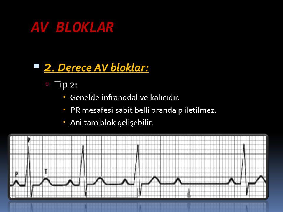 AV BLOKLAR  2. Derece AV bloklar:  Tip 2:  Genelde infranodal ve kalıcıdır.  PR mesafesi sabit belli oranda p iletilmez.  Ani tam blok gelişebili