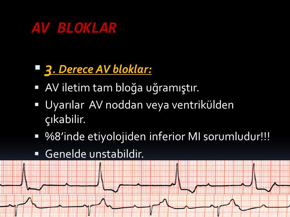 AV BLOKLAR  3. Derece AV bloklar:  AV iletim tam bloğa uğramıştır.  Uyarılar AV noddan veya ventrikülden çıkabilir.  %8'inde etiyolojiden inferior