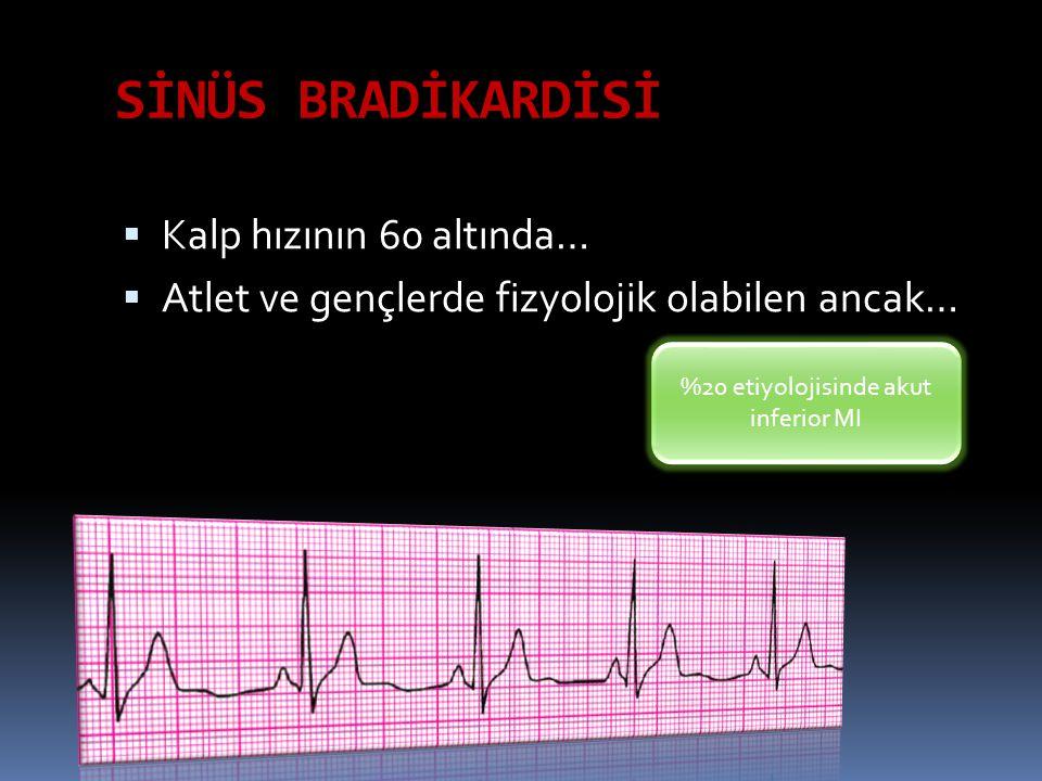 SİNOATRİAL ÇIKIŞ BLOKLARI Birinci derece: SA ileti zamanında uzama (EKG de saptanamaz; p dalgası kaybı yok )