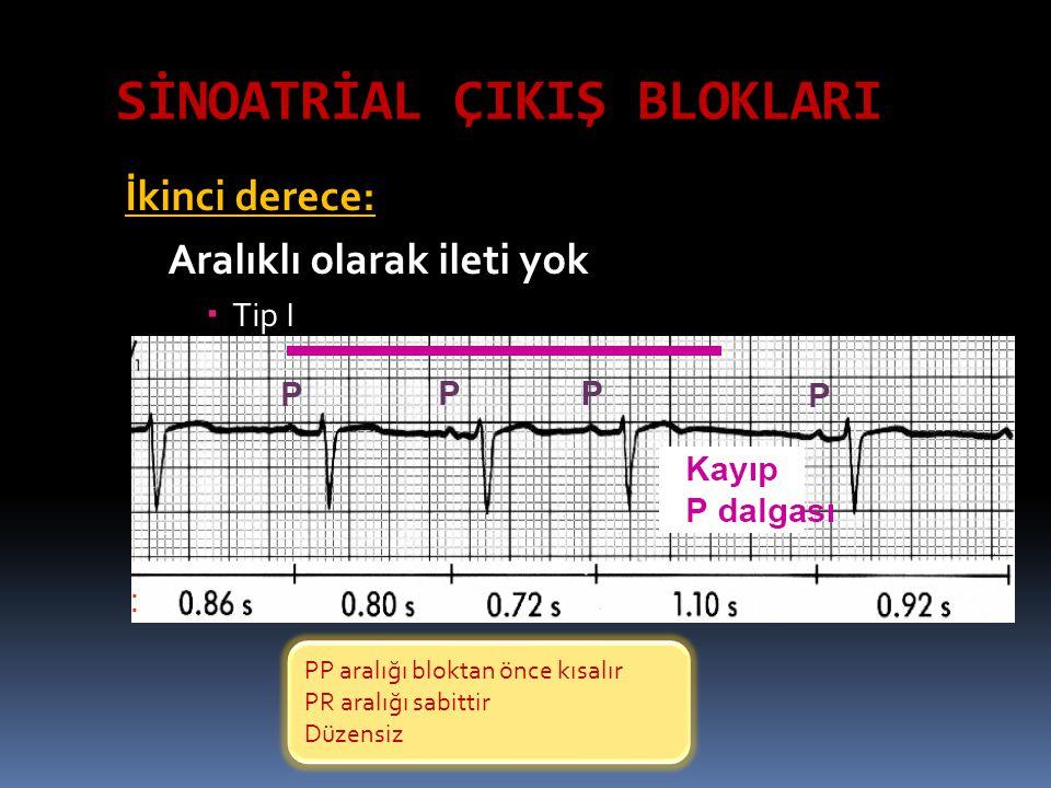 SİNOATRİAL ÇIKIŞ BLOKLARI İkinci derece: Aralıklı olarak ileti yok  Tip I PP aralığı bloktan önce kısalır PR aralığı sabittir Düzensiz