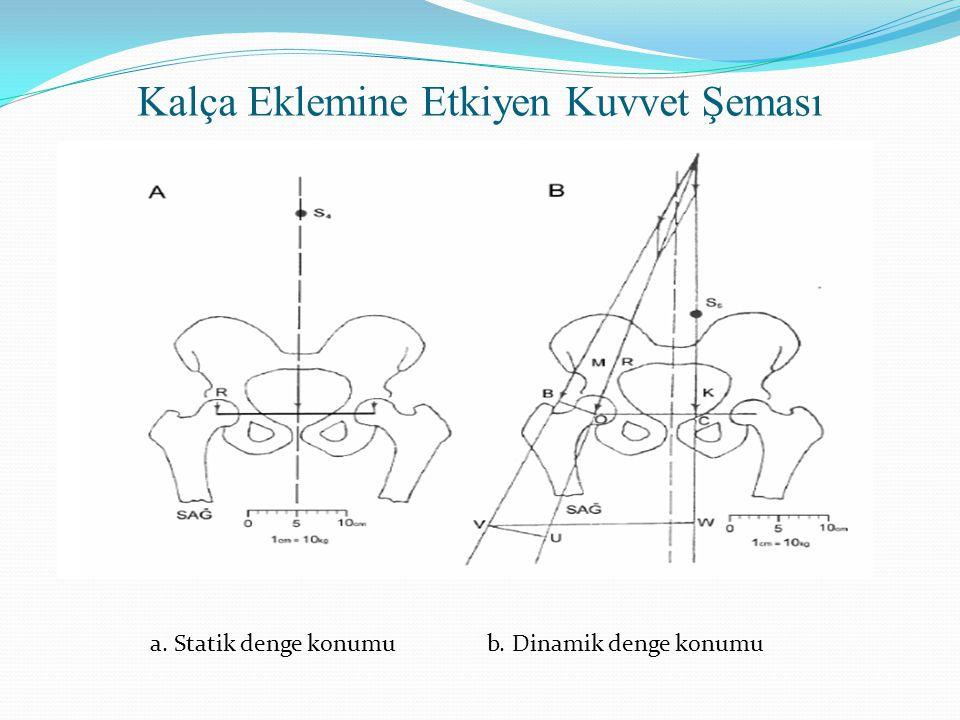 Femur başı rotasyon merkezi olacağı için, femur başı merkezini etkileyen bileşke kuvvet (R)'in büyüklüğü, abdüktör kas gücü (M) ve vücut ağırlığı (K) kuvvetlerinin vektörel toplamına eşittir.