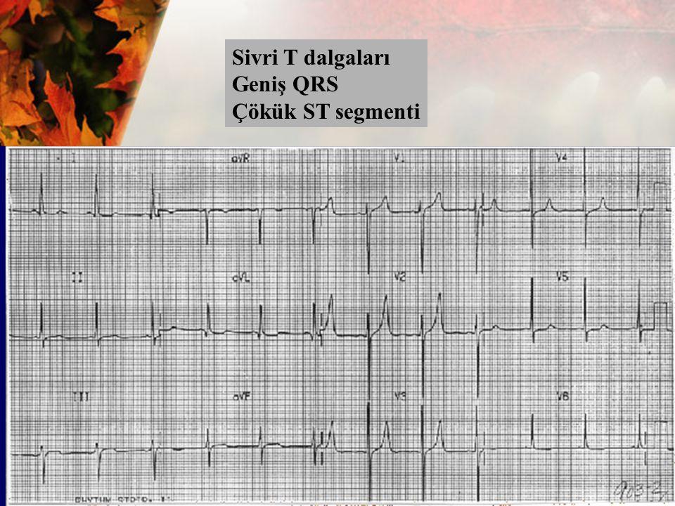 Sivri T dalgaları Geniş QRS Çökük ST segmenti