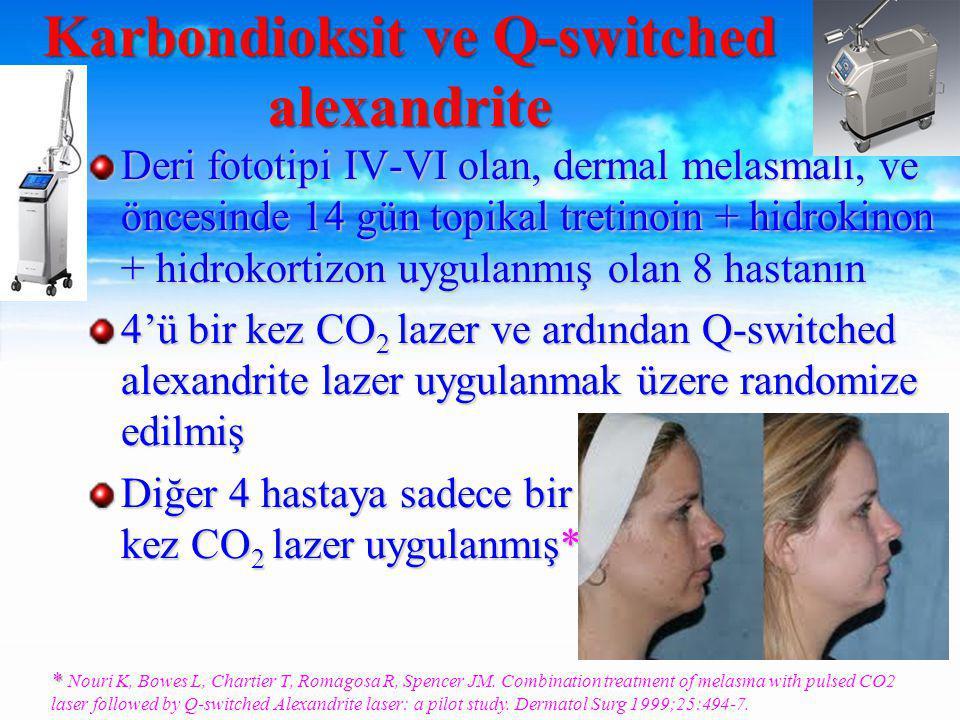 Deri fototipi IV-VI olan, dermal melasmalı, ve öncesinde 14 gün topikal tretinoin + hidrokinon + hidrokortizon uygulanmış olan 8 hastanın 4'ü bir kez CO 2 lazer ve ardından Q-switched alexandrite lazer uygulanmak üzere randomize edilmiş Diğer 4 hastaya sadece bir kez CO 2 lazer uygulanmış* Karbondioksit ve Q-switched alexandrite * * Nouri K, Bowes L, Chartier T, Romagosa R, Spencer JM.