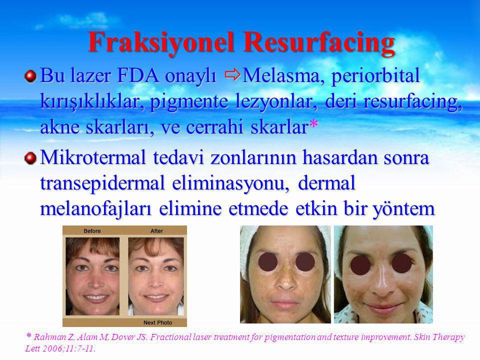 Bu lazer FDA onaylı  Melasma, periorbital kırışıklıklar, pigmente lezyonlar, deri resurfacing, akne skarları, ve cerrahi skarlar* Mikrotermal tedavi zonlarının hasardan sonra transepidermal eliminasyonu, dermal melanofajları elimine etmede etkin bir yöntem Fraksiyonel Resurfacing * * Rahman Z, Alam M, Dover JS.