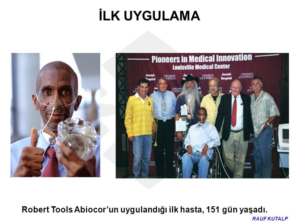 Robert Tools Abiocor'un uygulandığı ilk hasta, 151 gün yaşadı. İLK UYGULAMA RAUF KUTALP