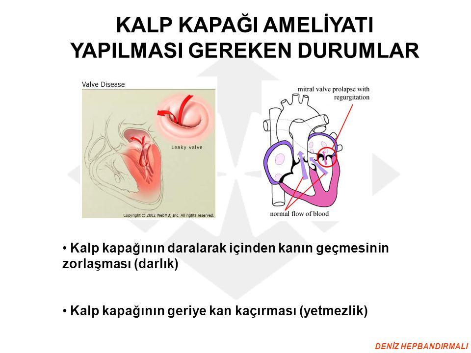 KALP KAPAĞI AMELİYATI YAPILMASI GEREKEN DURUMLAR Kalp kapağının daralarak içinden kanın geçmesinin zorlaşması (darlık) Kalp kapağının geriye kan kaçır