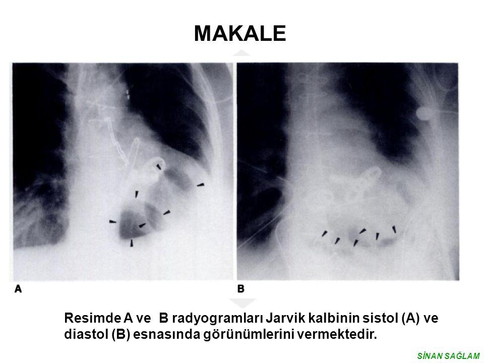 Resimde A ve B radyogramları Jarvik kalbinin sistol (A) ve diastol (B) esnasında görünümlerini vermektedir. MAKALE SİNAN SAĞLAM