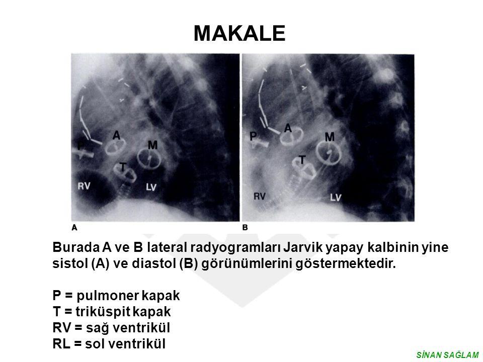 MAKALE Burada A ve B lateral radyogramları Jarvik yapay kalbinin yine sistol (A) ve diastol (B) görünümlerini göstermektedir. P = pulmoner kapak T = t