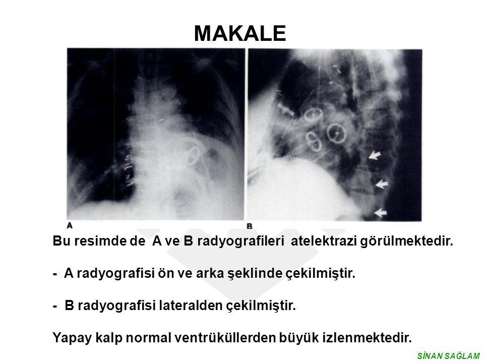 MAKALE Bu resimde de A ve B radyografileri atelektrazi görülmektedir. - A radyografisi ön ve arka şeklinde çekilmiştir. - B radyografisi lateralden çe