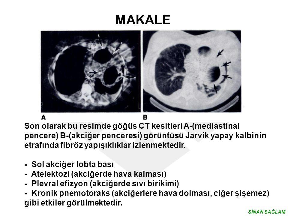 MAKALE Son olarak bu resimde göğüs CT kesitleri A-(mediastinal pencere) B-(akciğer penceresi) görüntüsü Jarvik yapay kalbinin etrafında fibröz yapışık