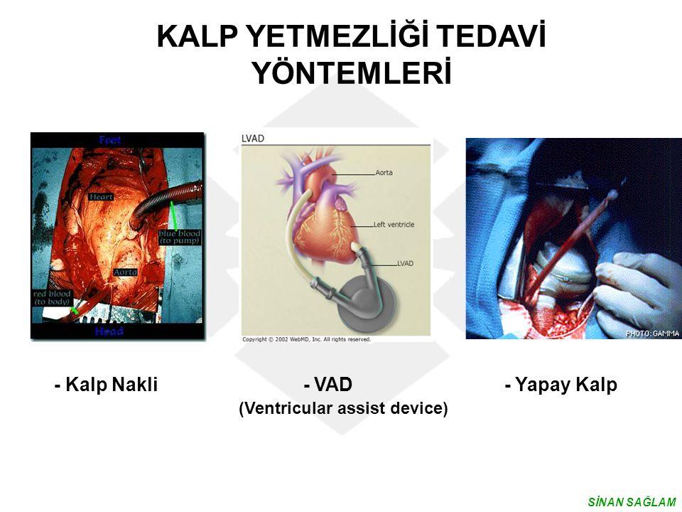 - Kalp Nakli - VAD - Yapay Kalp (Ventricular assist device) KALP YETMEZLİĞİ TEDAVİ YÖNTEMLERİ SİNAN SAĞLAM
