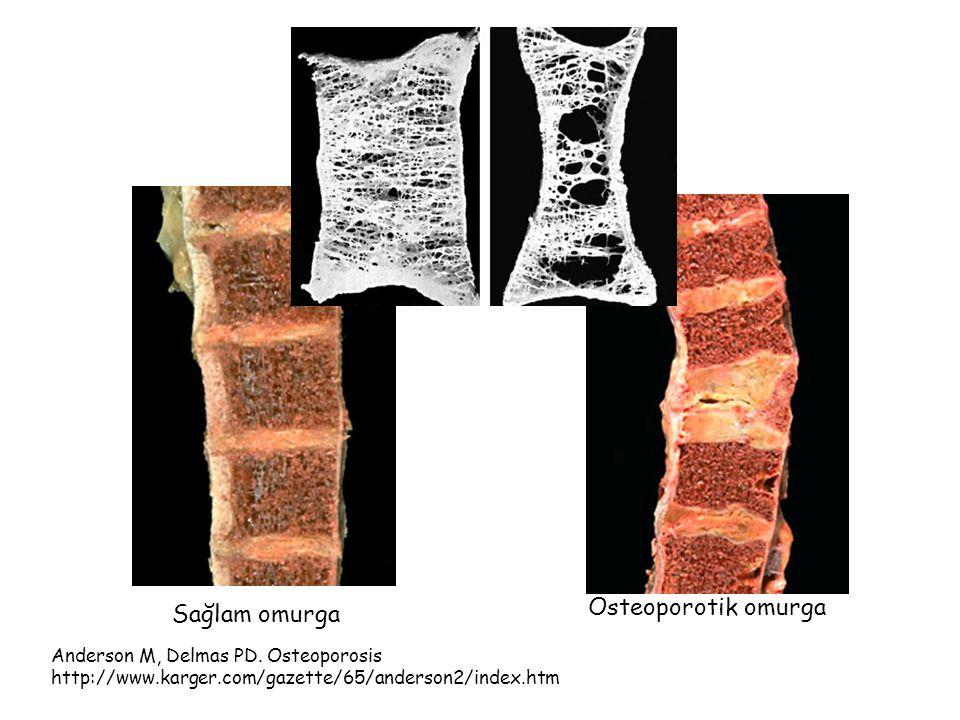 Osteoporoz nedenleri Hareketsizlik Yeterli güneş ışığı alamama Doğal olmayan, rafine gıdaların yenilmesi.