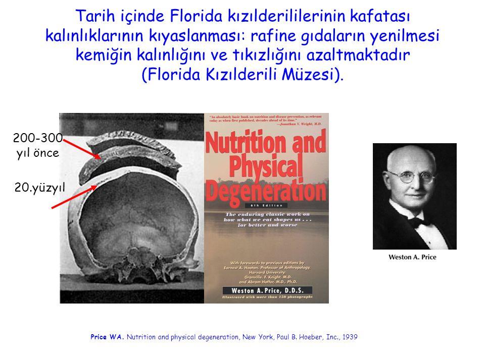 Taş devrinde ve günümüzde potansiyel böbrek asit yükü ve net asit yapımı Taş devri(3000 kcal/gün)Günümüz(2500 kcal/gün) Alınan asit ve baz (g/gün) İdrar (mEq/gün) Alınan asit ve baz (g/gün) İdrar (mEq/gün) Protein/sülfat Fosfor Potasyum Kalsiyum Magnezyum 226.0 3.22 10.50 1.62 1.22 110 118 -215 -2 -32 79.0 1.51 2.50 0.92 0.32 39 55 -51 -12 -8 Böbrek asit yükü Organik asitler Net asit yapımı ------ -39 61 22 ------ 23 41 64 Remer T, Manz F.