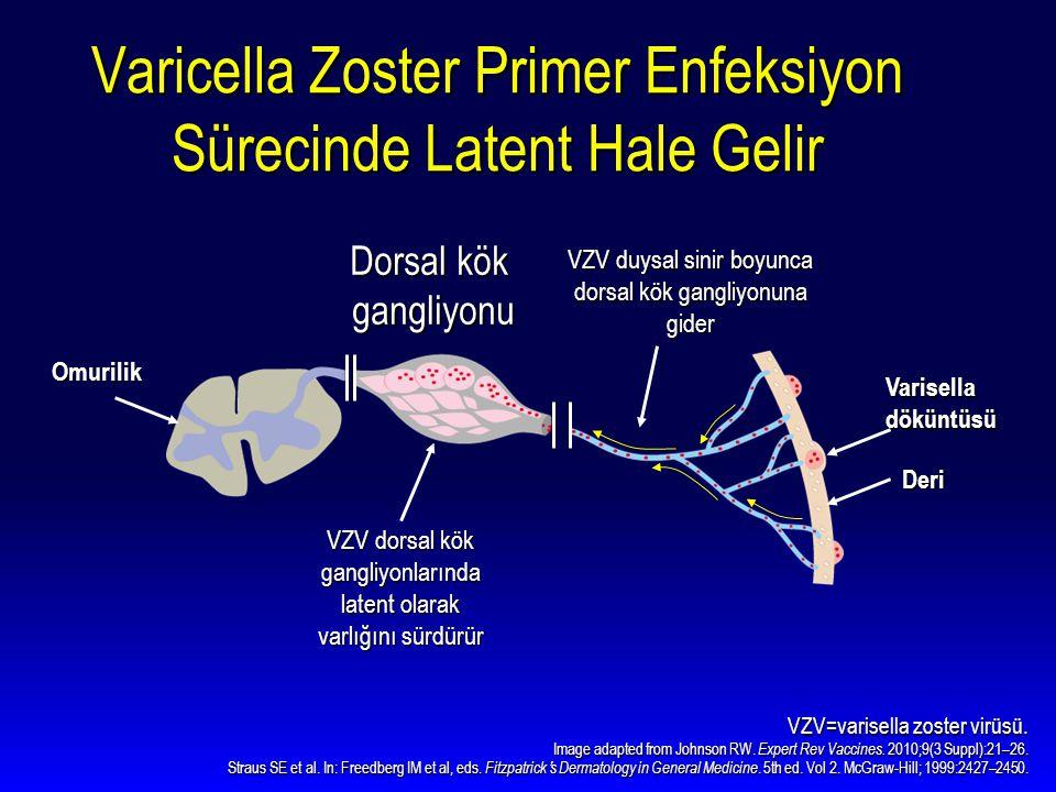 Varicella Zoster Primer Enfeksiyon Sürecinde Latent Hale Gelir VZV=varisella zoster virüsü. Image adapted from Johnson RW. Expert Rev Vaccines. 2010;9